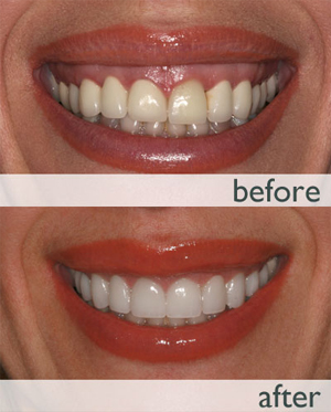 Gummy Smile Correction (Gum lift and Contouring)